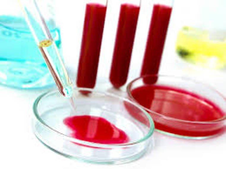Больше 40 клиник Челябинской области получат новые аппараты для анализа крови