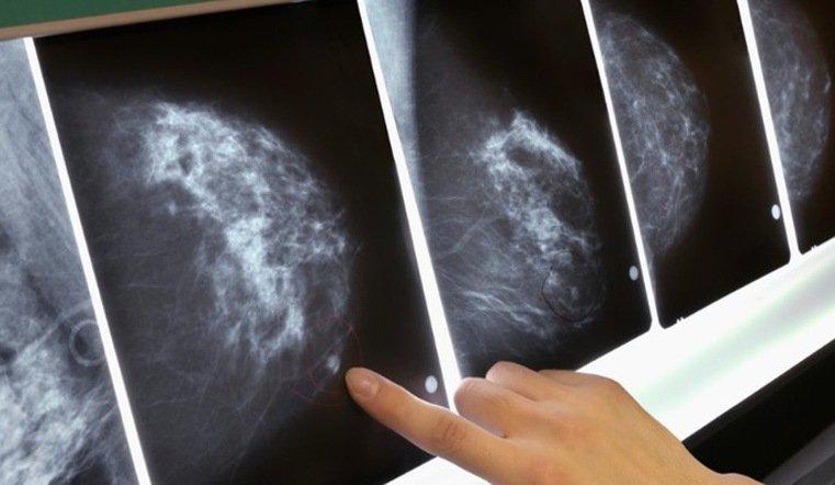 ВЧелябинске появился новый маммограф для диагностики онкологии наранней стадии