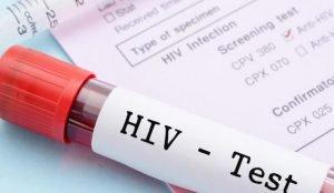 В Челябинске стартует неделя экспресс-тестирования на ВИЧ