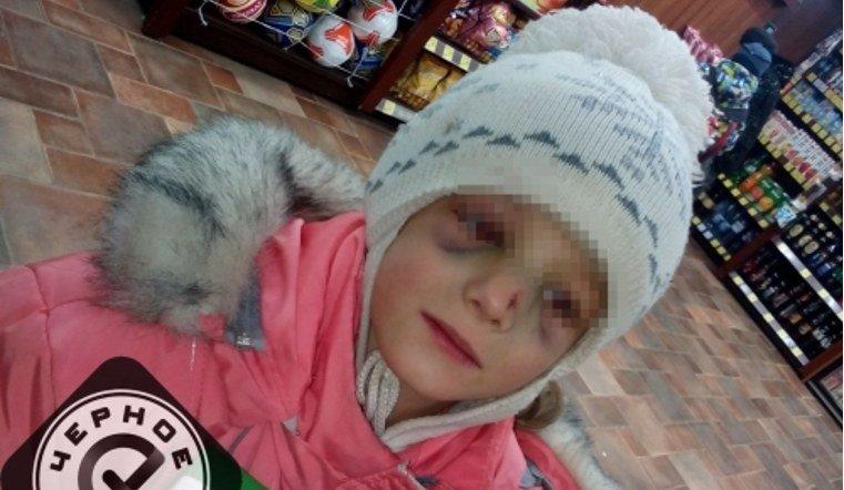 Девочку с иняками поместили в приют