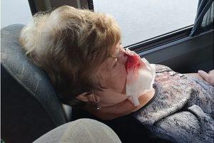 Челябинки получили серьезные травмы в Турции и Крыму
