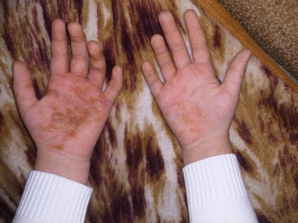 Доигрались. В Челябинской области ребенок получил сильнейшие ожоги от слайма