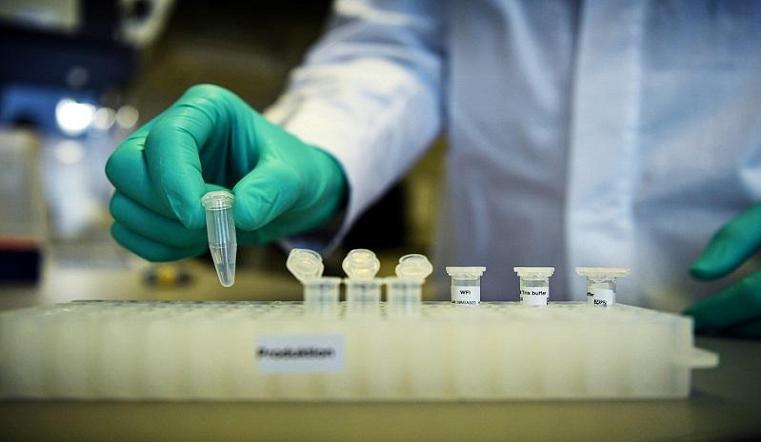 87 больных за сутки. Коронавирус в Челябинской области поразил 784 человека