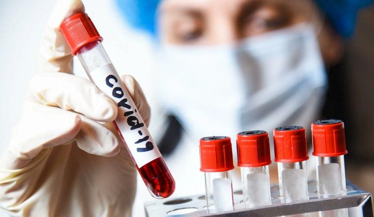 Зараженных 967. В Челябинской области прирост больных и новая жертва коронавируса
