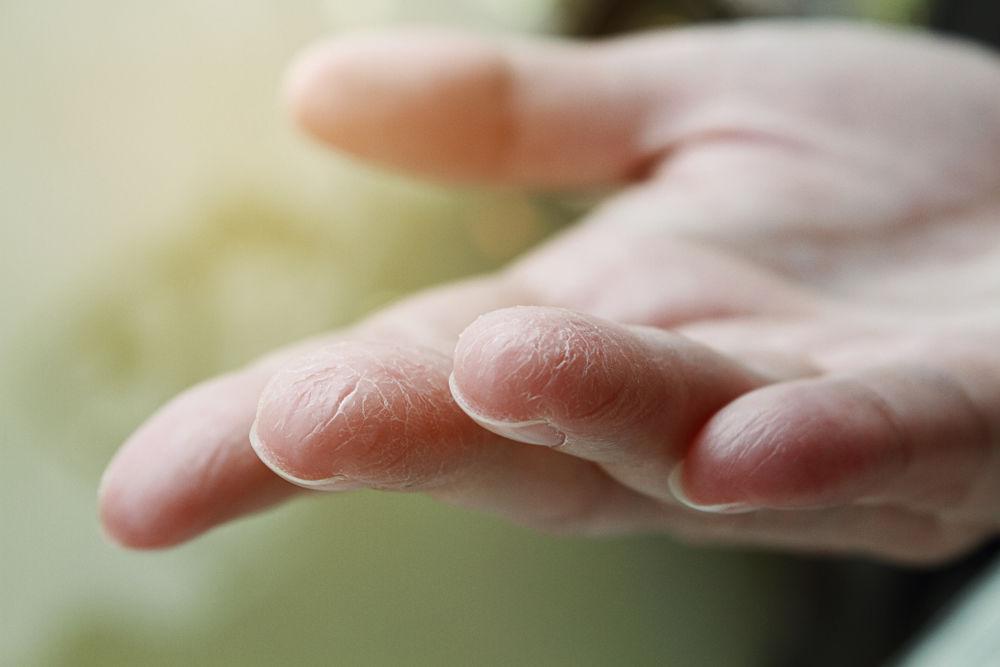 Сделать своими руками. Как сохранить красоту рук и уберечь их от сухости