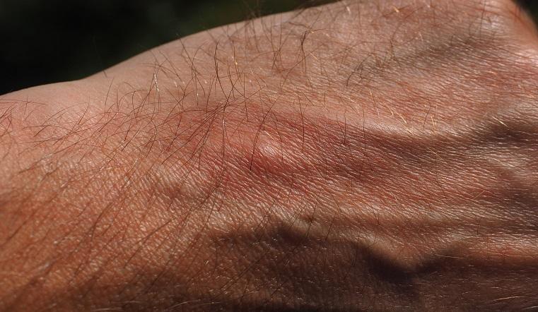 Опасное лето. Врачи рассказали, почему нельзя чесать место укуса комара
