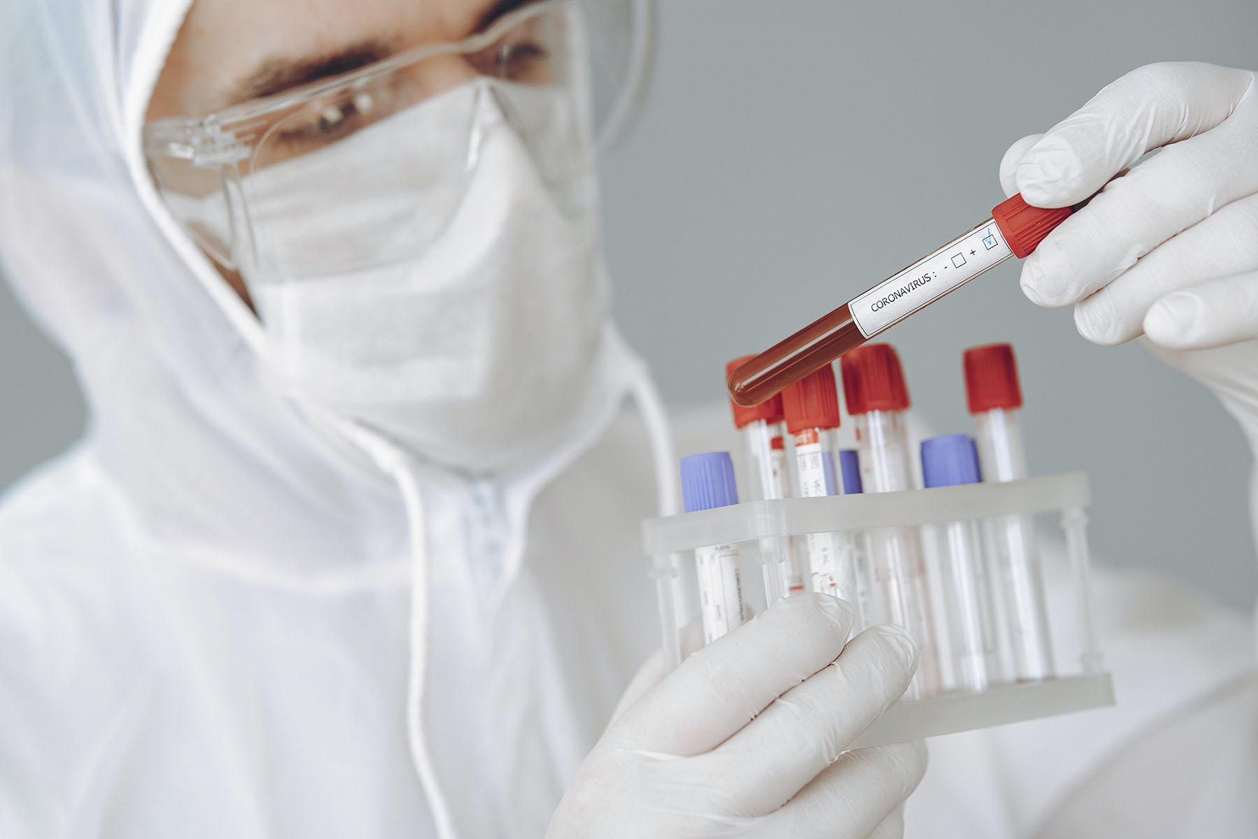 Сдержать эпидемию. Челябинцев приглашают пройти тесты на коронавирус