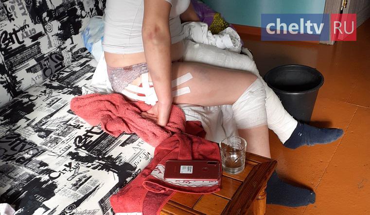 Все ноги в гипсе. В Челябинской области мужчина жестоко избил молотком 3 женщин