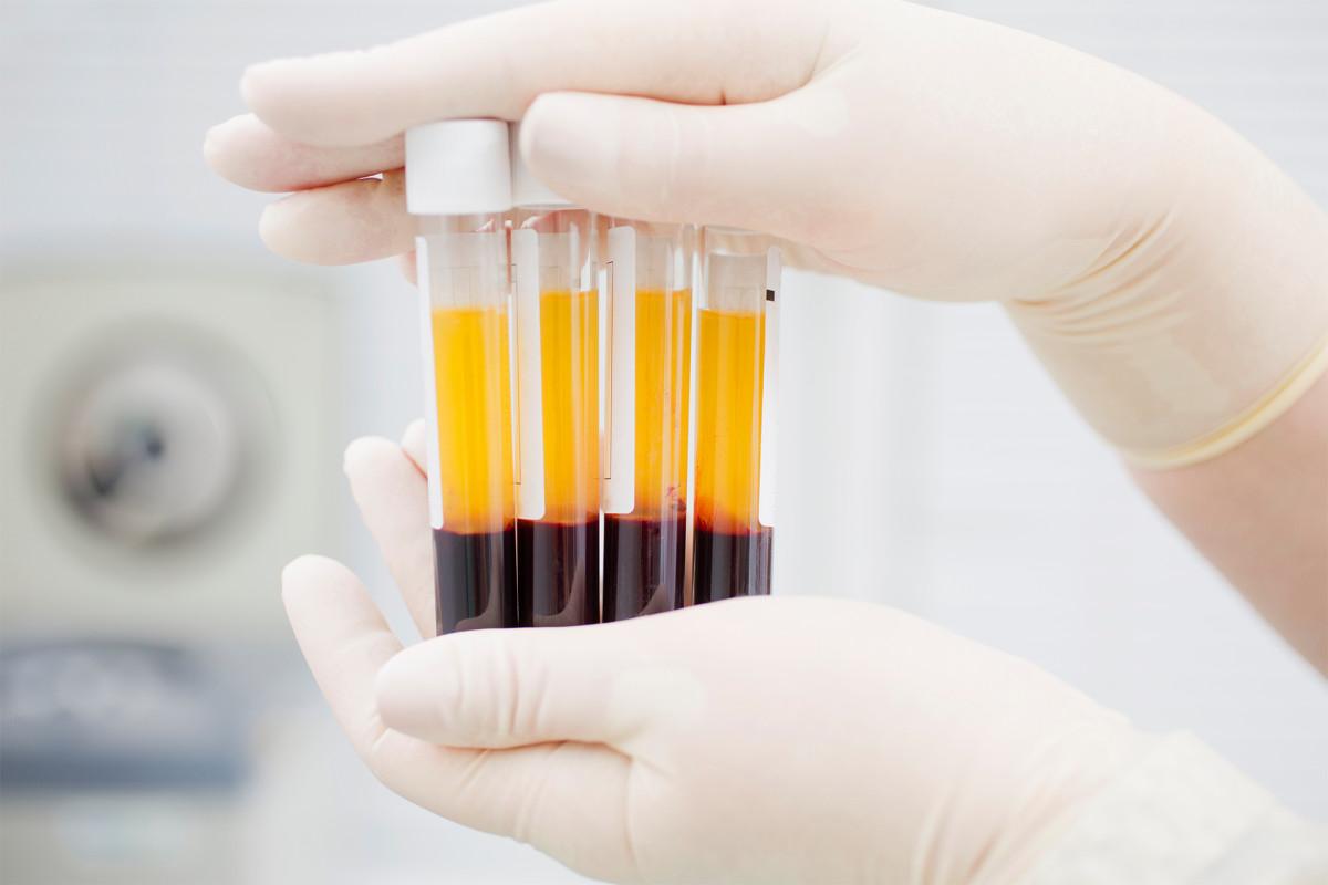 Спасительная плазма. Южноуральцы, переболевшие коронавирусом, становятся донорами