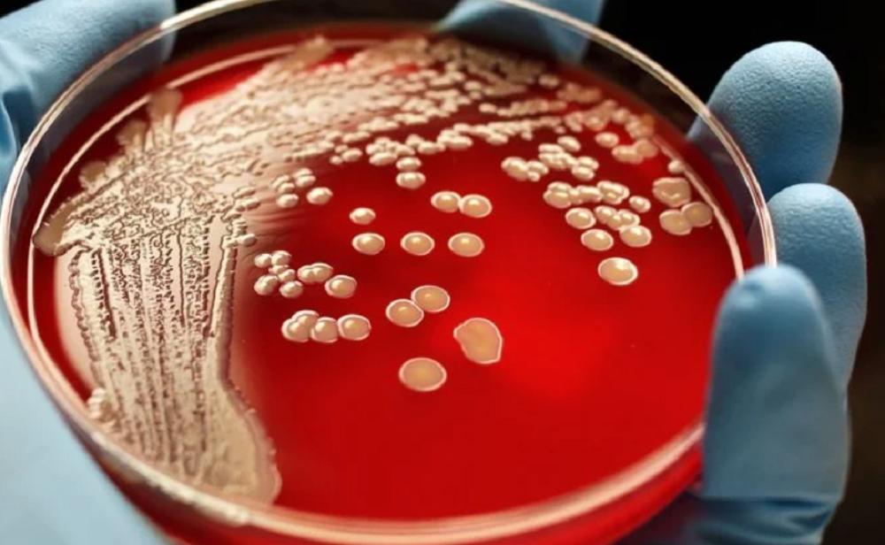 Смертельные бактерии. Ученые открыли колоссальное количество новых микробов