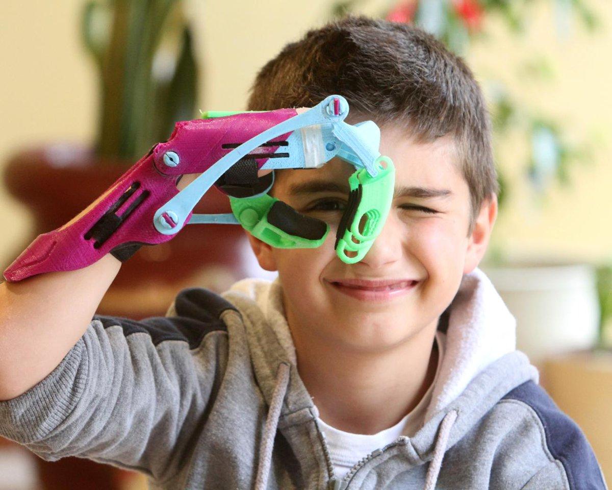 Будущее и реальность. Дети с экзопротезами встретились в Челябинске