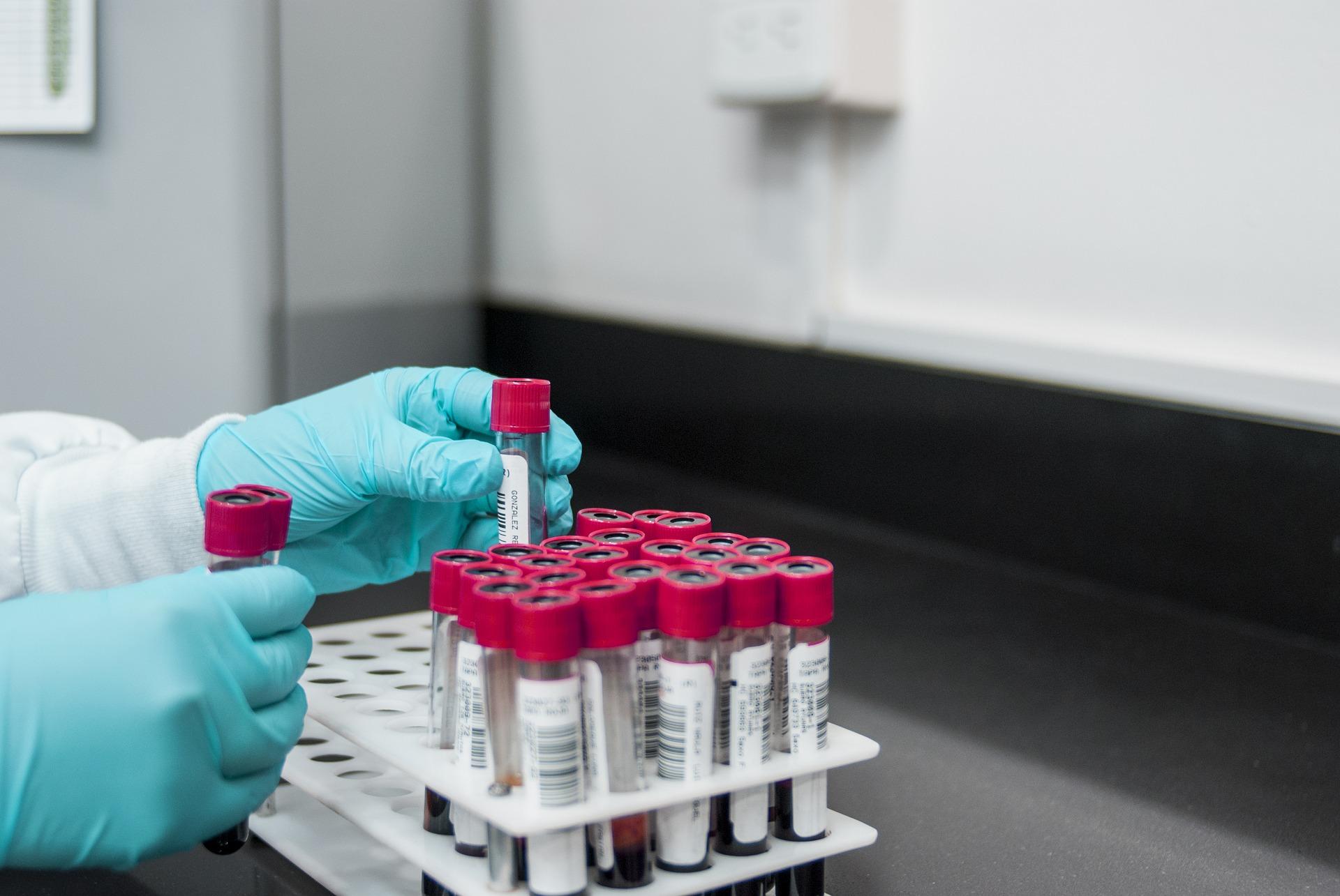 Более заразный британский штамм коронавируса впервые выявили в России
