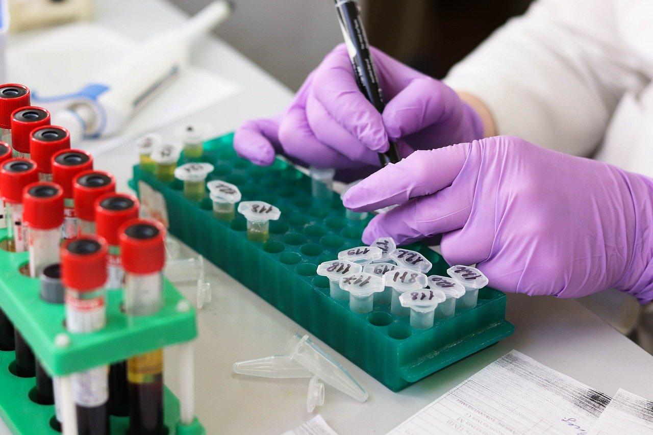 Сдать тест на коронавирус бесплатно смогут жители Челябинской области