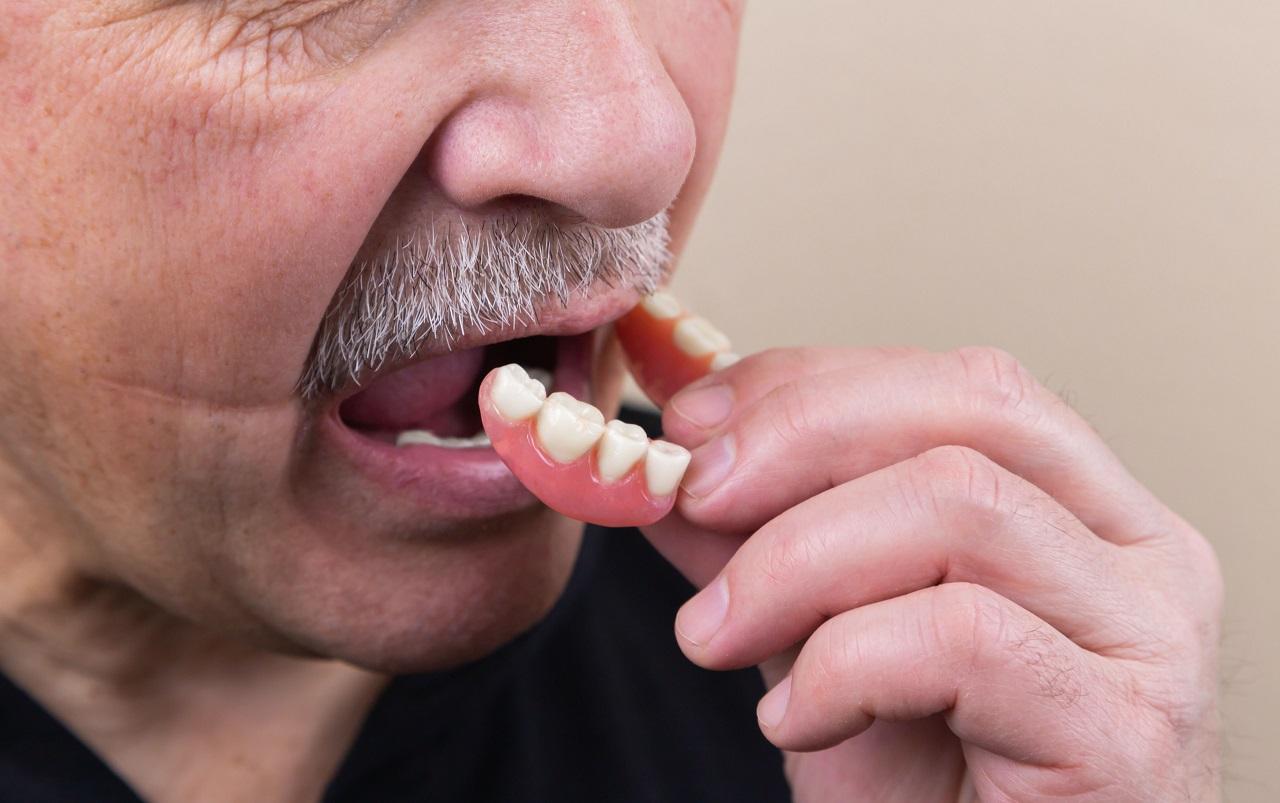 Что на самом деле происходит с зубами, если не лечить кариес
