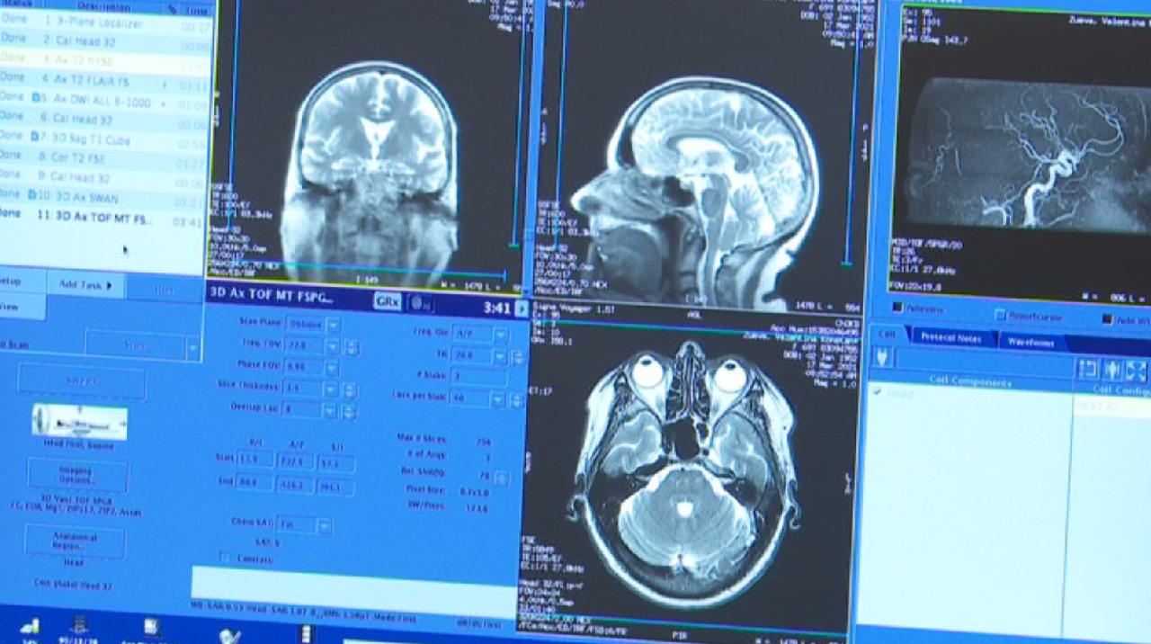 Долгожданный прибор: в Челябинске появился новый томограф