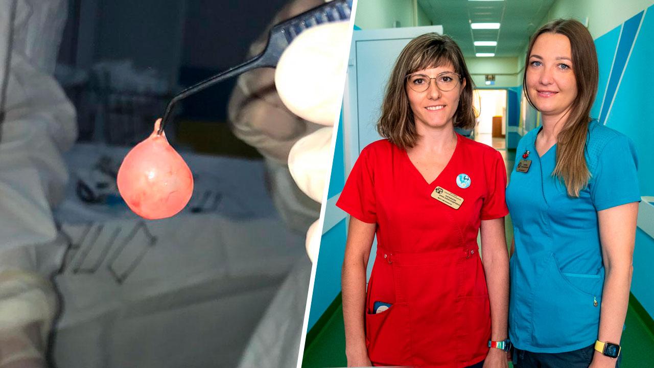 Из глаза 4-месячного малыша в Челябинске удалили гигантскую опухоль
