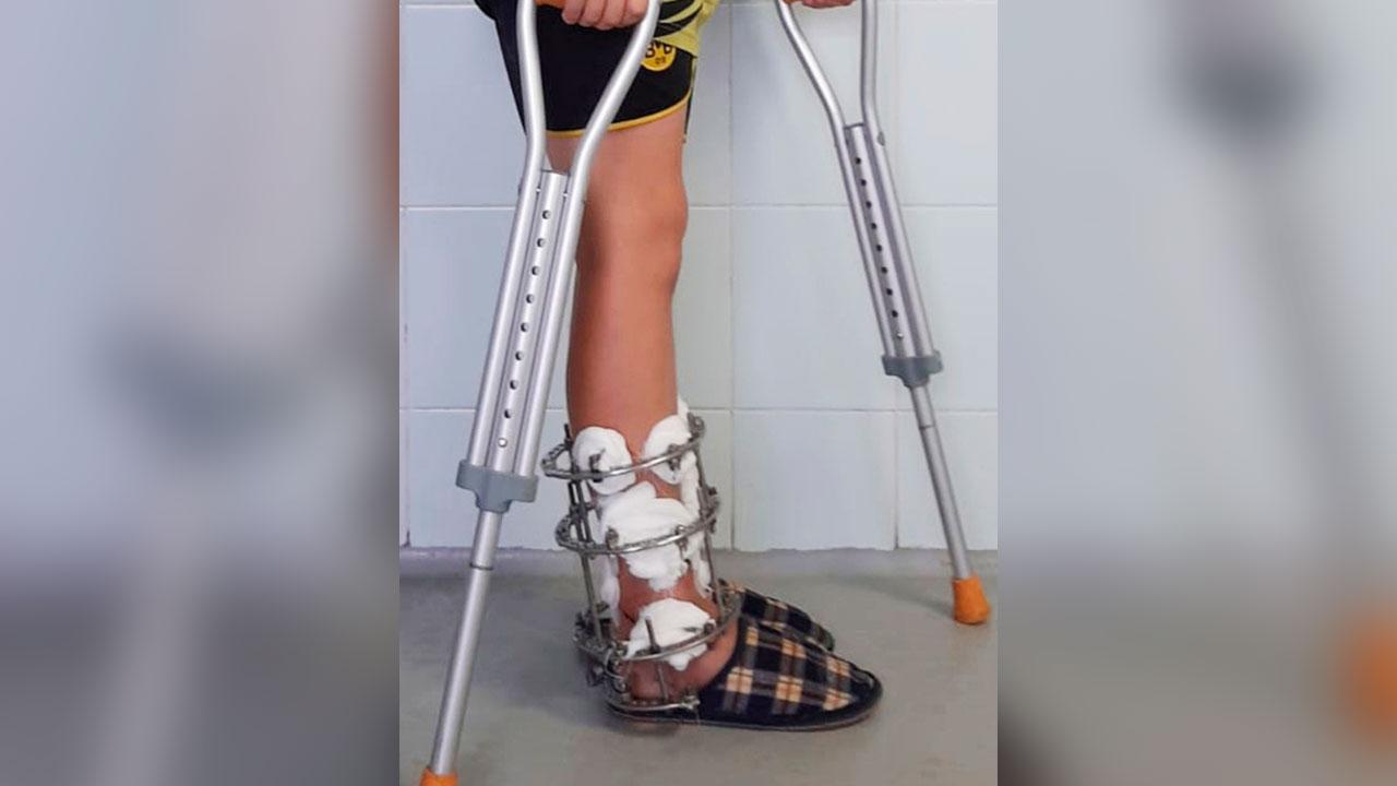 Кость вошла в землю: в Челябинской области ребенок получил жуткую травму