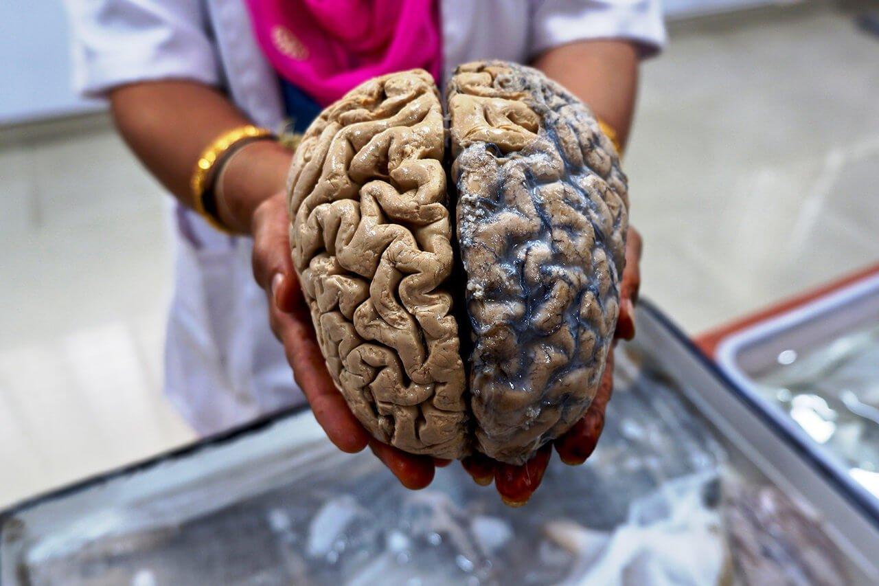 Головной мозг: интересные факты и мифы