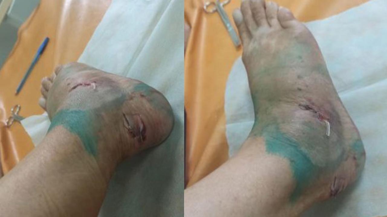 Разорвала ногу: в Челябинской области собака напала на женщину